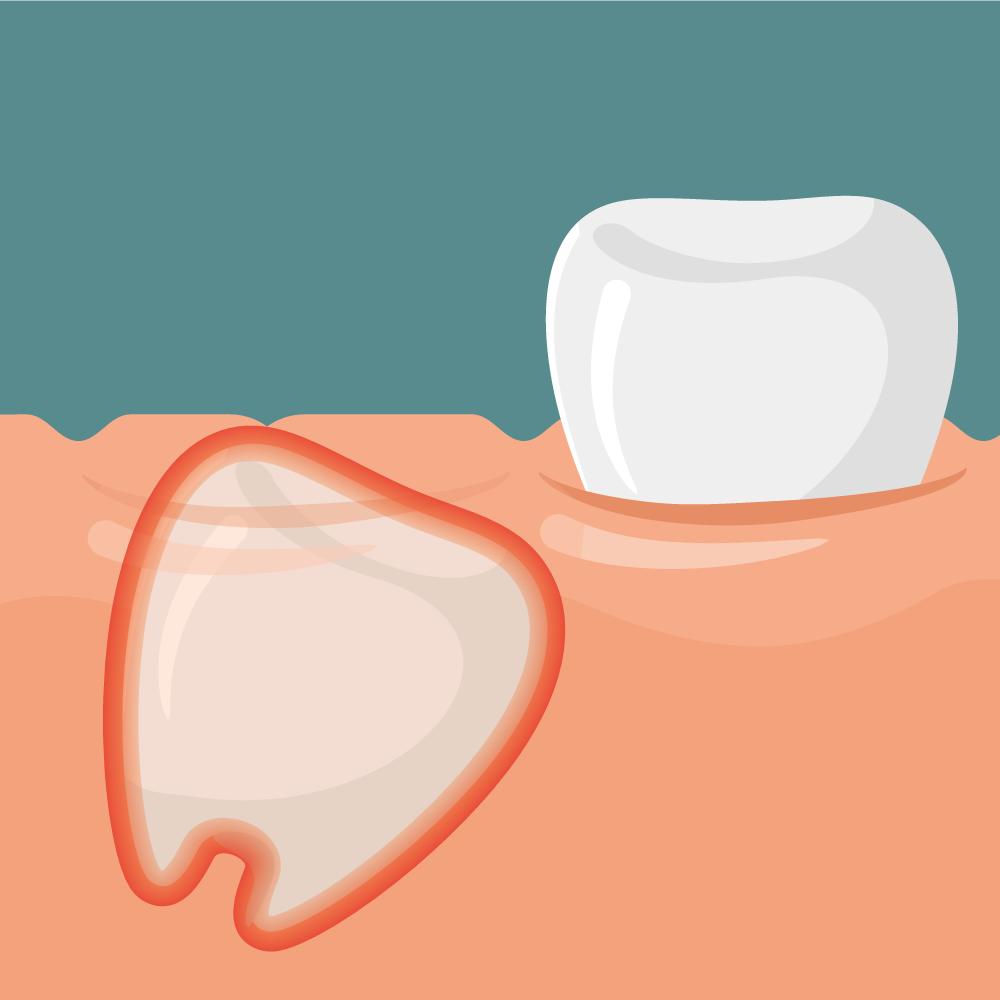 Disodontiasi del dente del giudizio