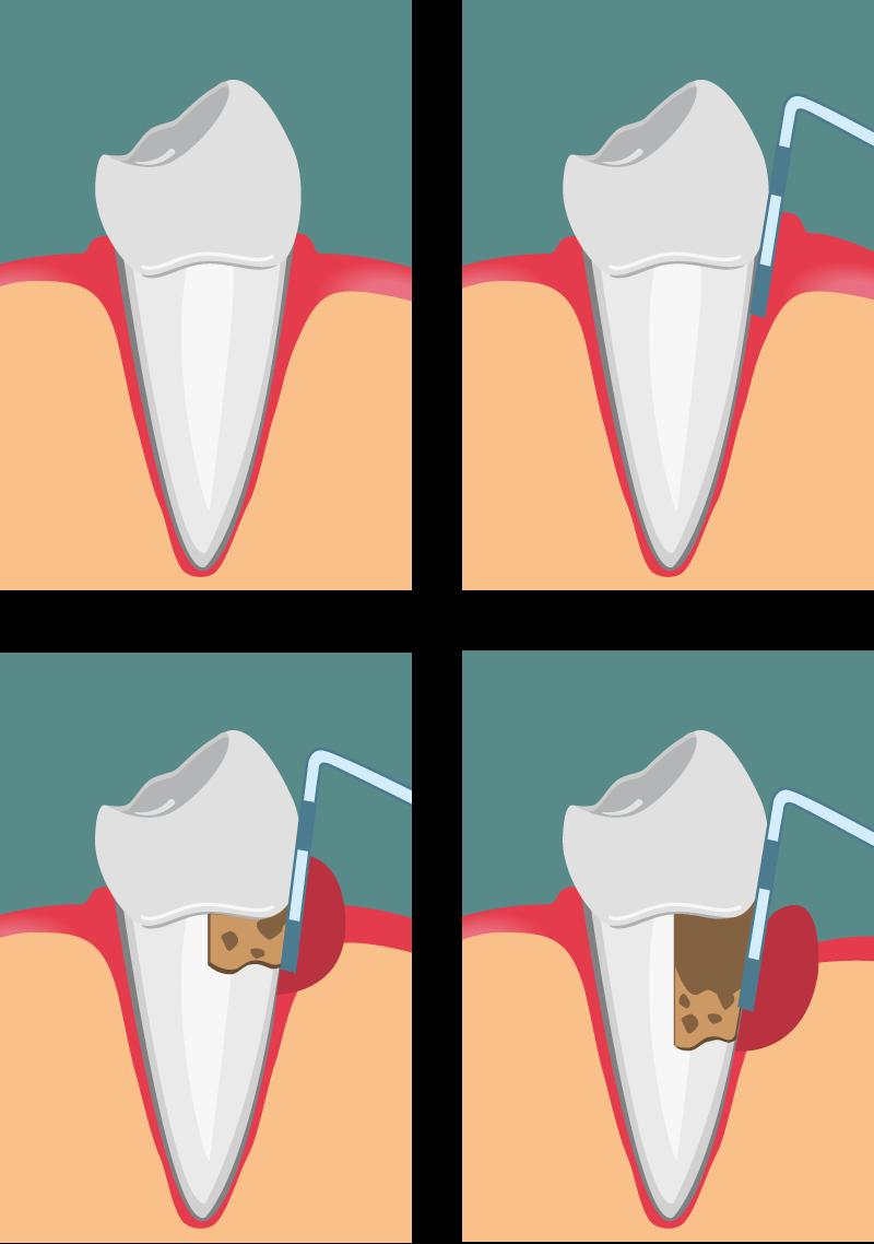 Progressione della malattia parodontale