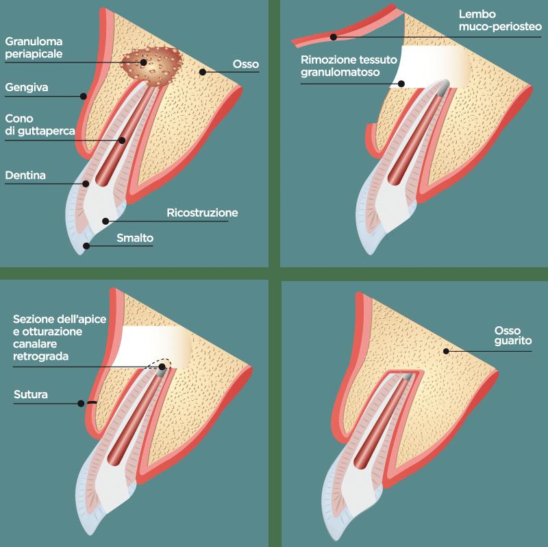 Endodonzia chirurgica (Apicectomia)