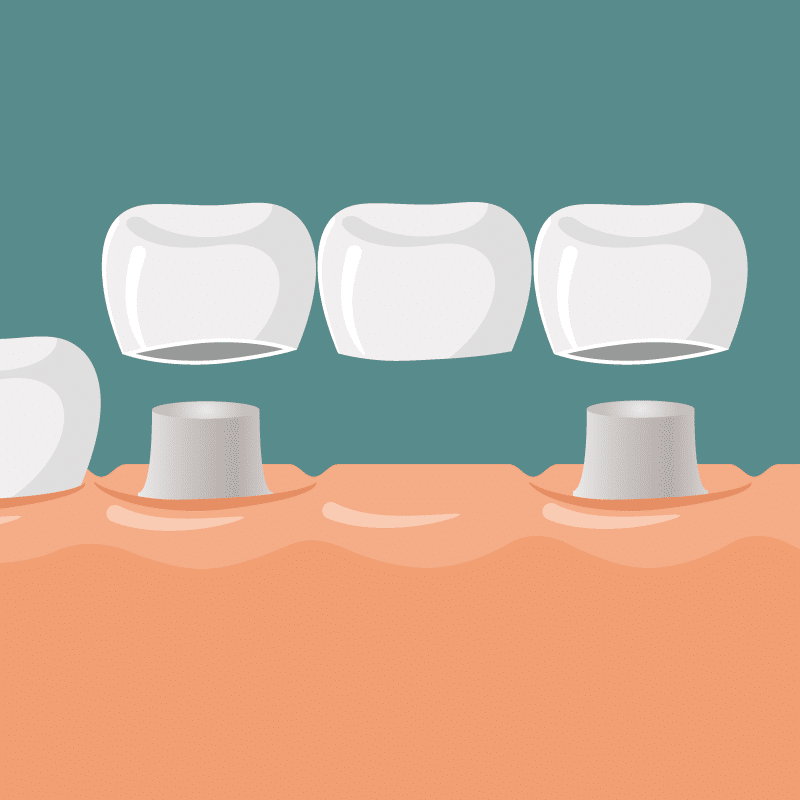 Studio Dentistico Nezzo - Protesi dentale