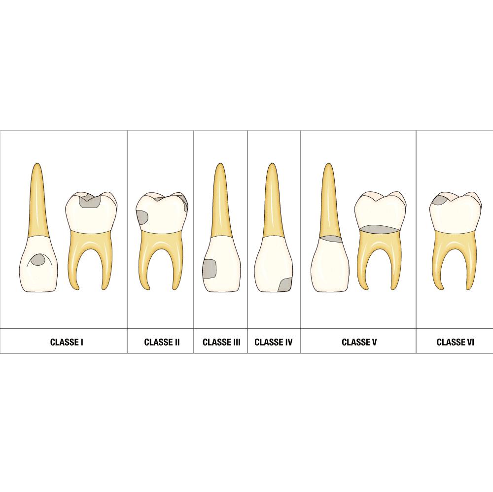 Odontoiatria Conservativa, Studio Dentistico Nezzo