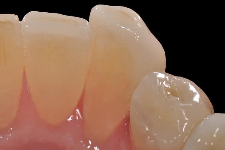 Odontoiatria-Estetica-5-8m