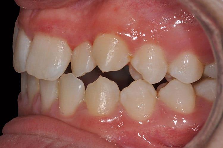 Ortodonzia-1-3
