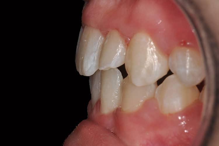 Ortodonzia-1-8