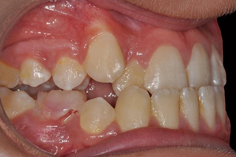 Ortodonzia-2-2