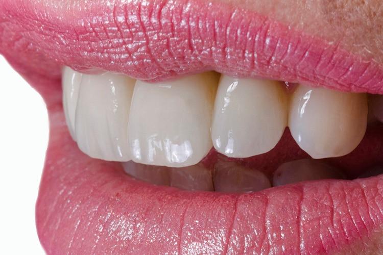 Protesi-Dentale-2-14-mod2